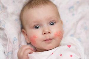Atopik Dermatit Cilt Nedir? Bebeklerde Atopik Dermatit Neden Olur?